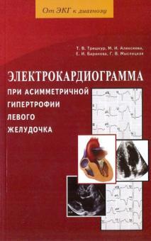 Электрокардиограмма при асимметричной гипертрофии левого желудочка - Трешкур, Баранова, Алексеева, Мыслицкая